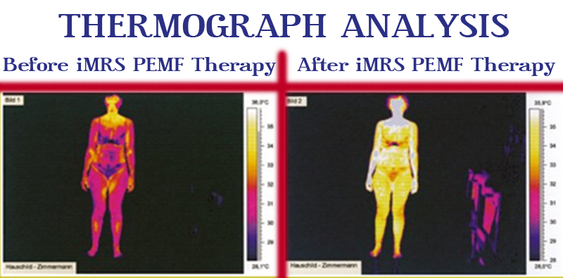Thermograph Analysis Before and After iMRS PEMF Therapy